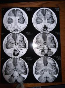 dscf1480-223x300 Dr Nazarov